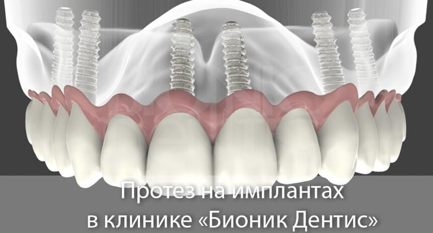 Зубные протезы нового поколения без неба: цена в Москве