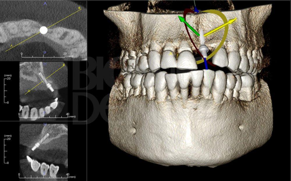 компьютерная томография перед имплантацией зубов