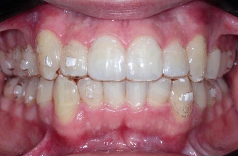 капы выравнивание зубов