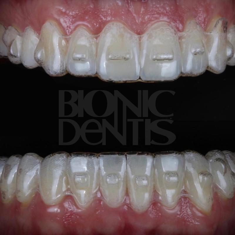 элайнеры выравнивание зубов