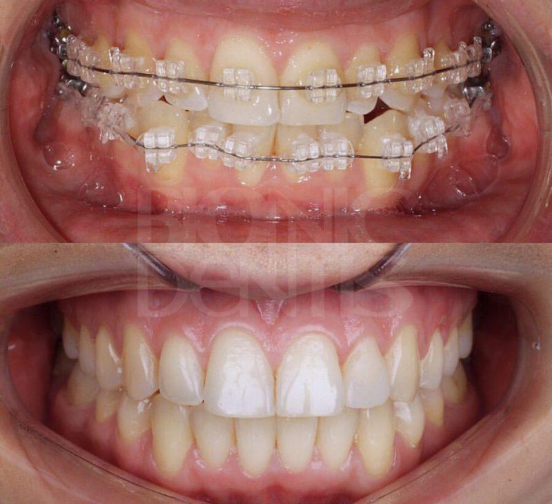 хороший ортодонт