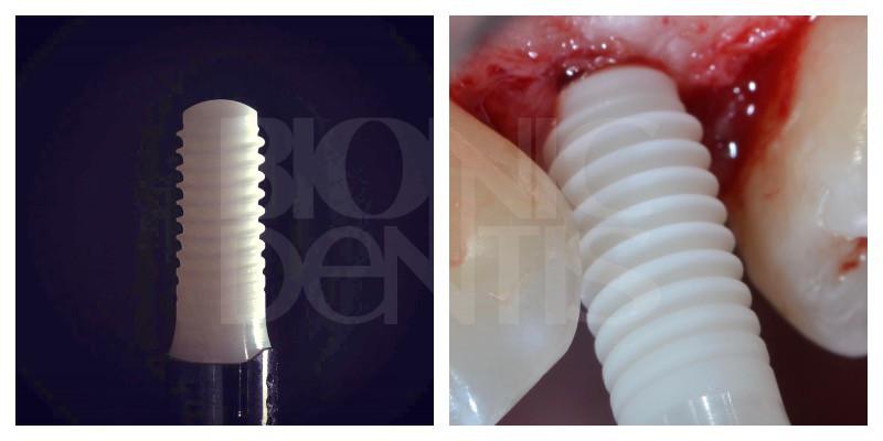 postavit tsirkonievye implanty