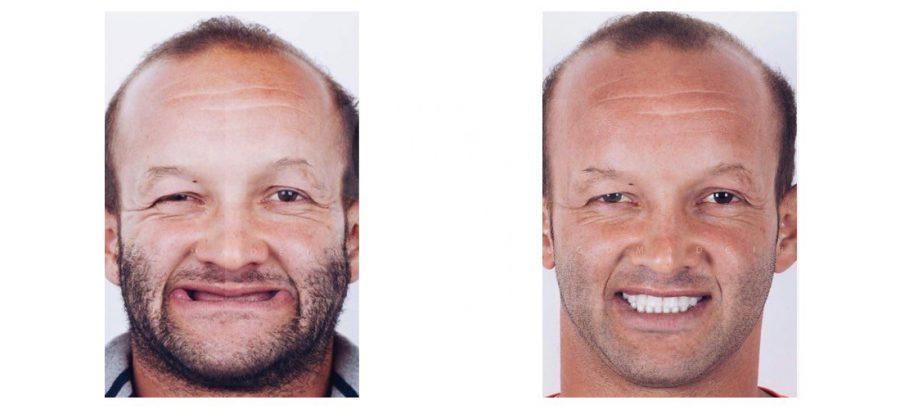протез на имплантах фото
