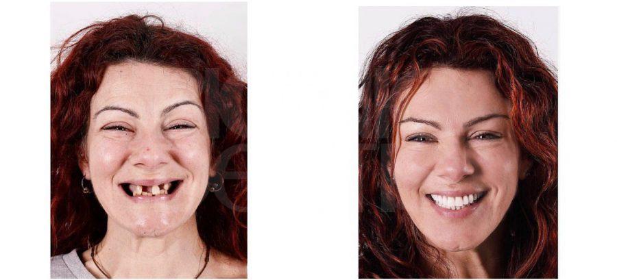 протез на имплантах до и после