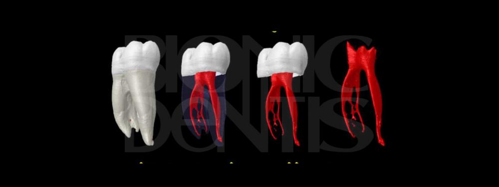 справляемся со сложным лечением зубов