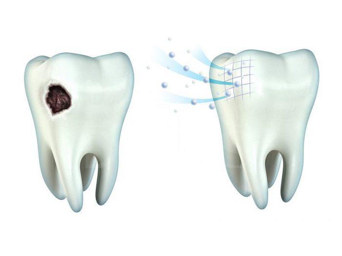 профессиональная гигиена полости рта у стоматолога