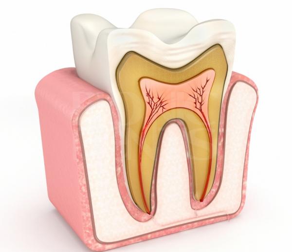 причины возникновения перфорации корня зуба