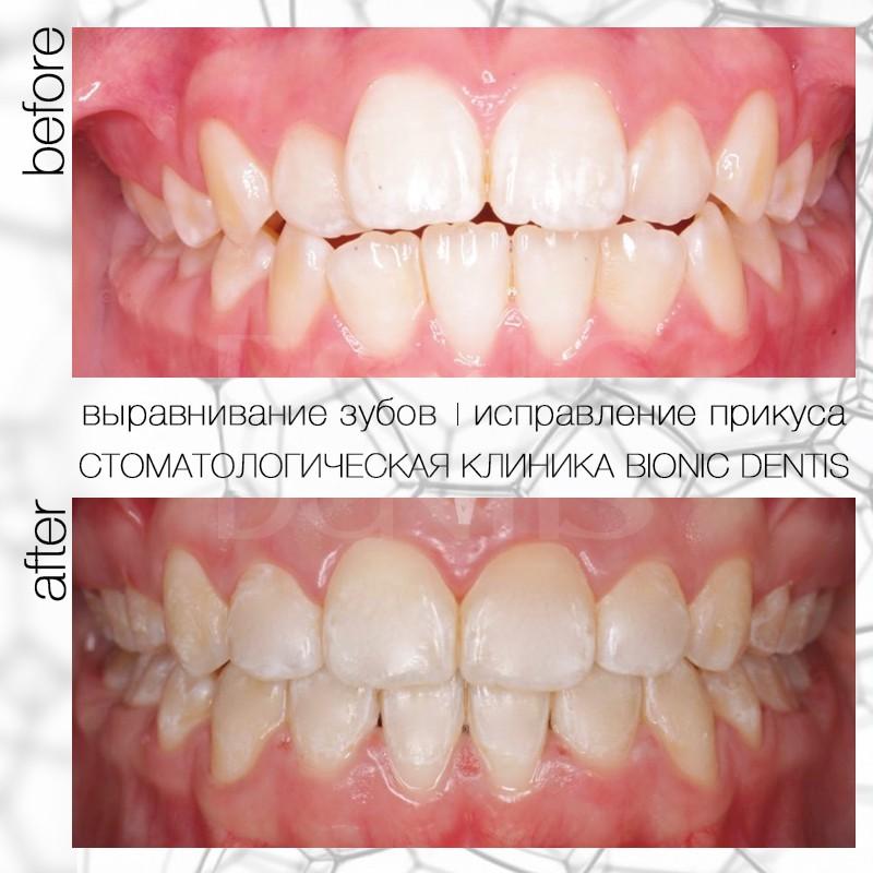 сапфировые брекеты фото до и после