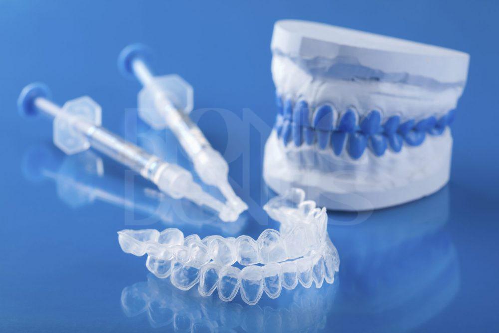 Стоимость системы укрепления эмали зуба в стоматологии