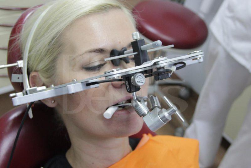 """Несъемные зубные протезы в стоматологии """"Бионик Дентис"""""""