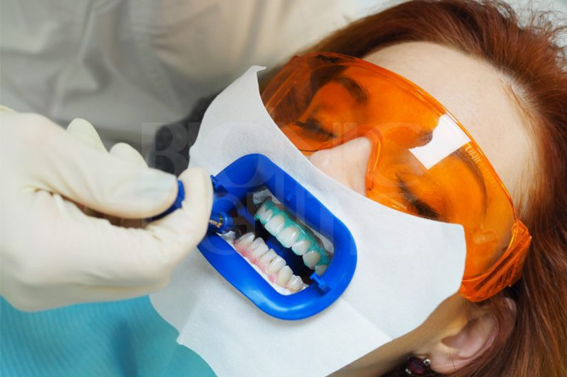 zoom phillips отбеливание зубов