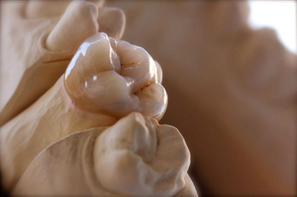 керамические вкладки из дисиликата лития