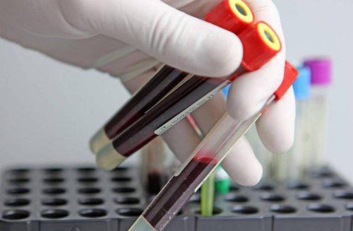 Использование PRF-активных протеинов при синус-лифтинге