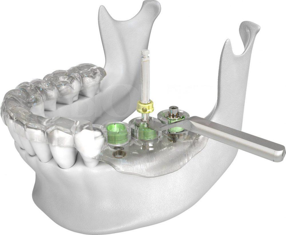 изготовление хирургического имплантологического шаблона