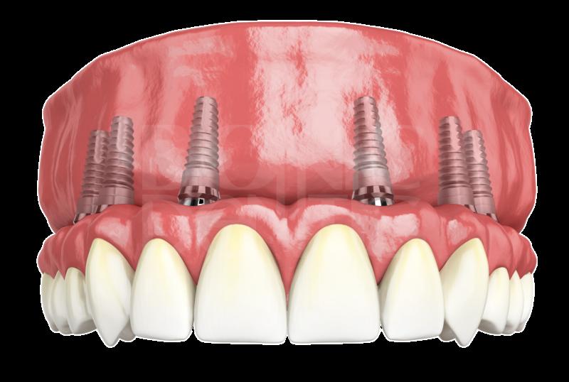 Какие зубные протезы