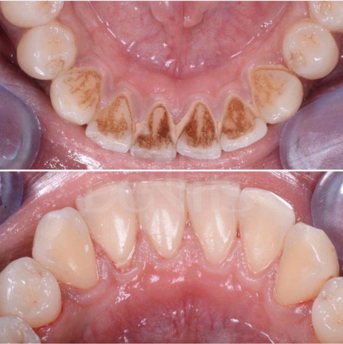 чистка зубного камня в Бионик Дентис