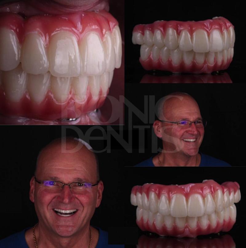 протез на имплантах при полном отсутствии зубов