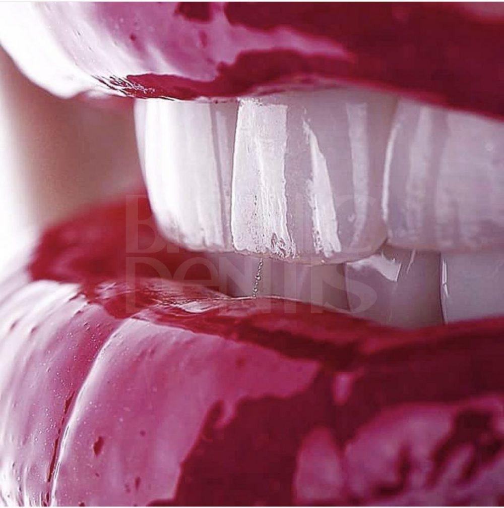 как устанавливают виниры на зубы видео
