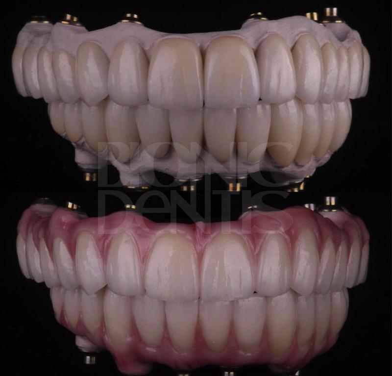 современный протез зубов без неба