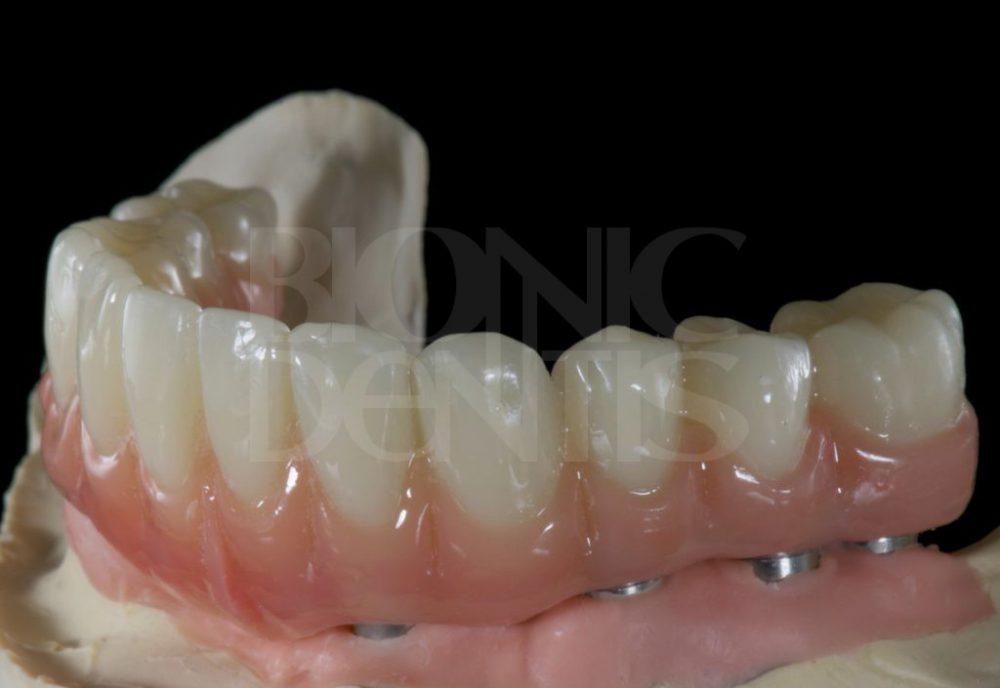 гарантия на зубные протезы 20 лет