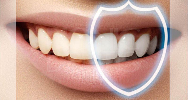 как укрепить зубы дома