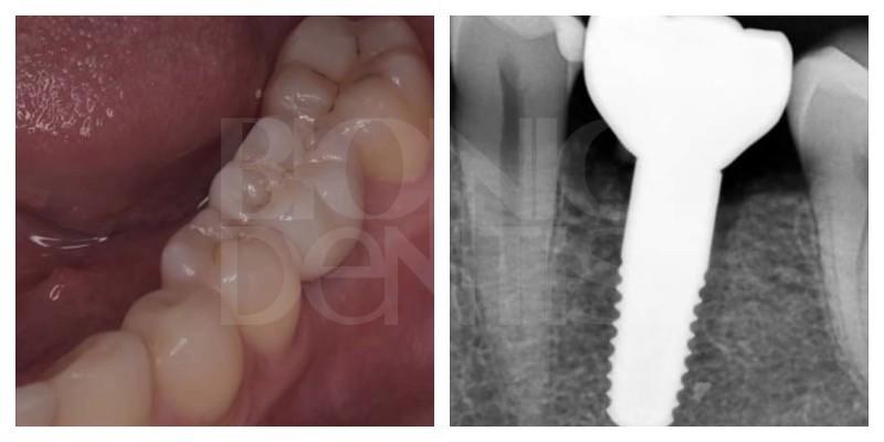 tsirkonievye implanty otzyvy