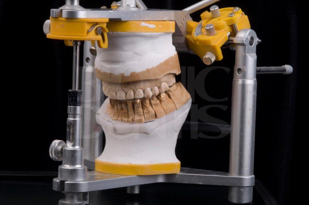 новые зубные виниры