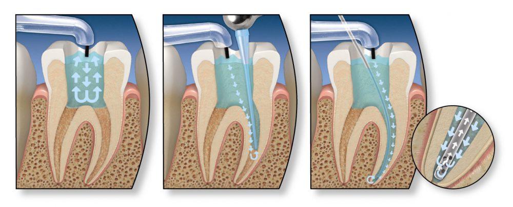 проникновение дезинфекции при лечение кисты зуба