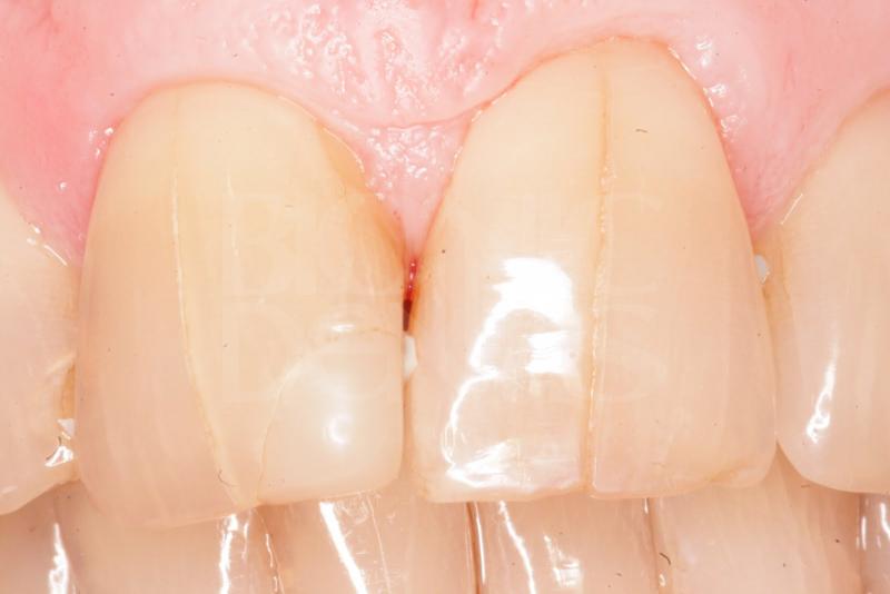 повышенная чувствительность эмали зуба