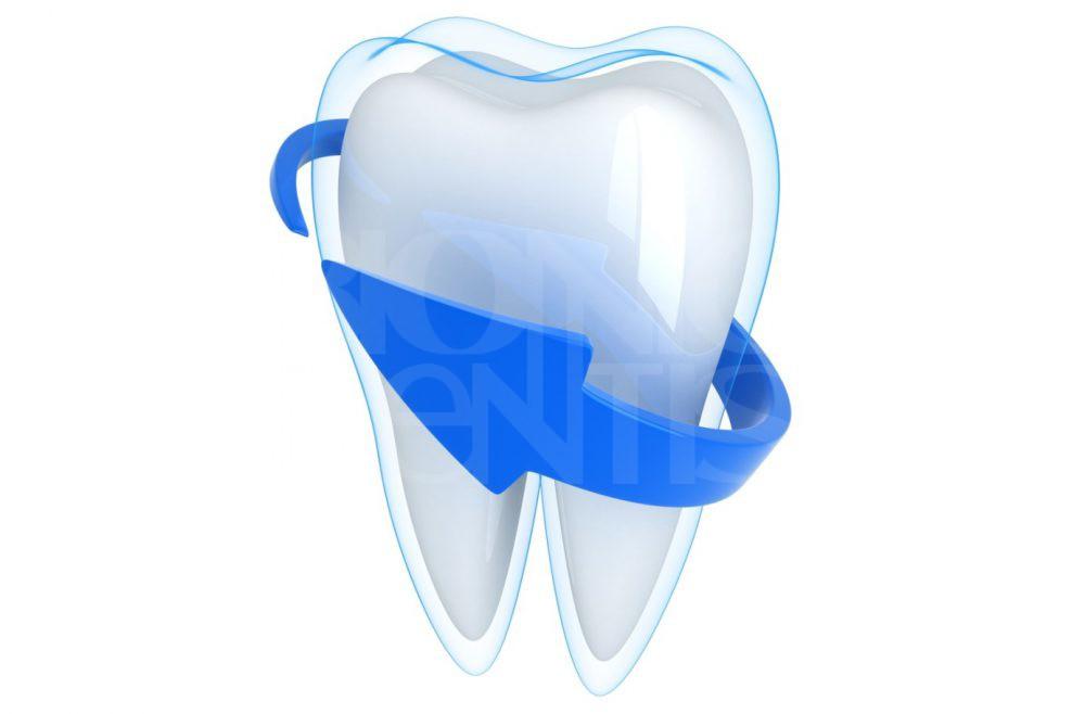укрепление зубов в Бионик Дентис