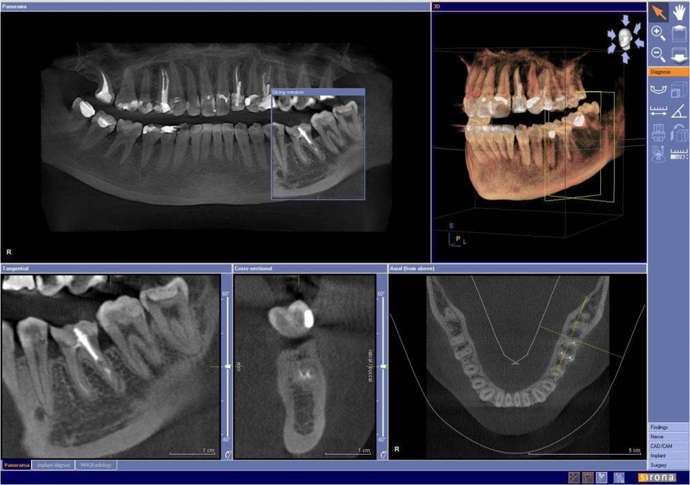 схема больного зуба