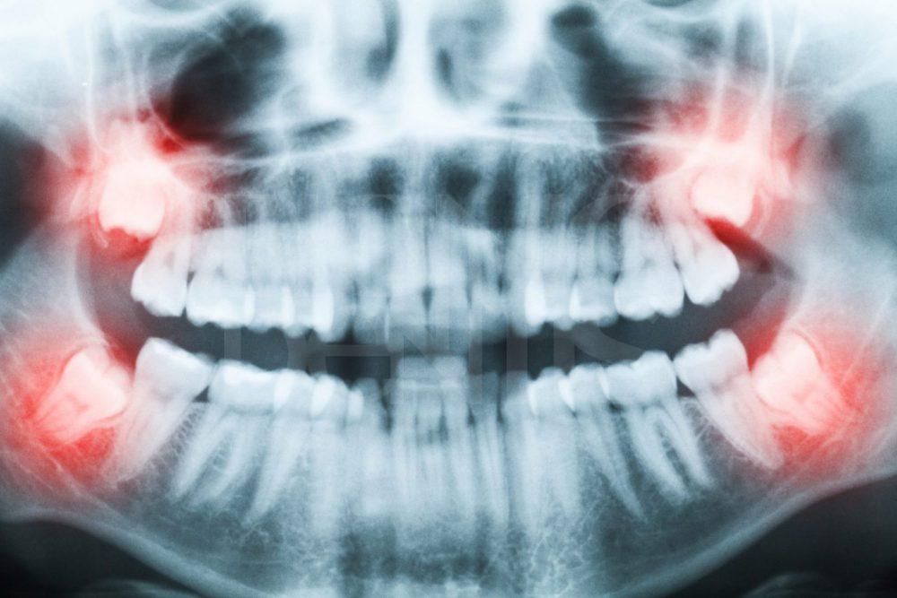 удаление зуба мудрости ультразвуком